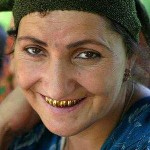 300px-tajikistan_gold_teeth